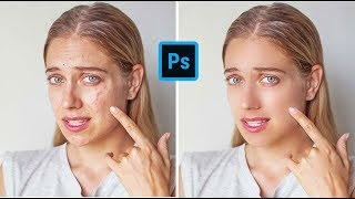 Best Skin retouching -Special technique in Photoshop tutorial