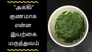 அக்கி குணமாக இயற்கை மருத்துவம் - Tamil health tips
