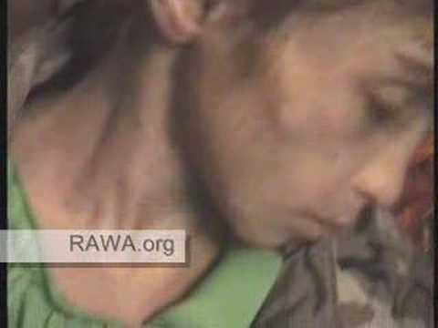7 year old girl - victim of tribal Pashtun-Taliban Justice