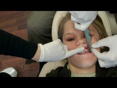 See TAD Placement at Wilson Orthodontics! Tel: 770-536-0882