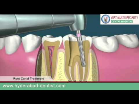 Root Canal Cost, Pain, Symptoms | Dental Decay Treatment Hyderabad