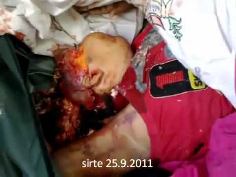 [+18 Warning] Sirte 25-09-2011: Can you afford to watch this NATO Massacre against children?