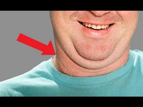 How to lose fat on double chin recommend
