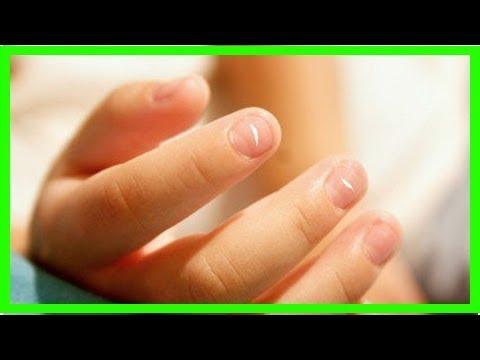 5 Veränderungen der Fingernägel und ihre Ursachen