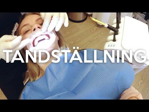 vlogg: SKAFFAR TANDSTÄLLNING (hallå, varför sa ni inte att det gör såhär ont?!) + SBCA
