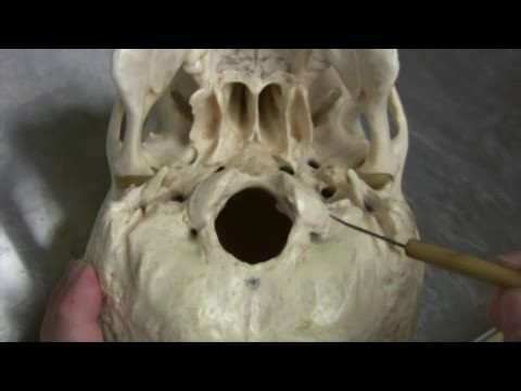 Dr. Fabian Identifying Parts of the Skull Part 2 of 2