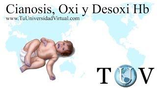 Cianosis Oxihemoglobina desoxihemoglobina y problemas con saturacion de O2
