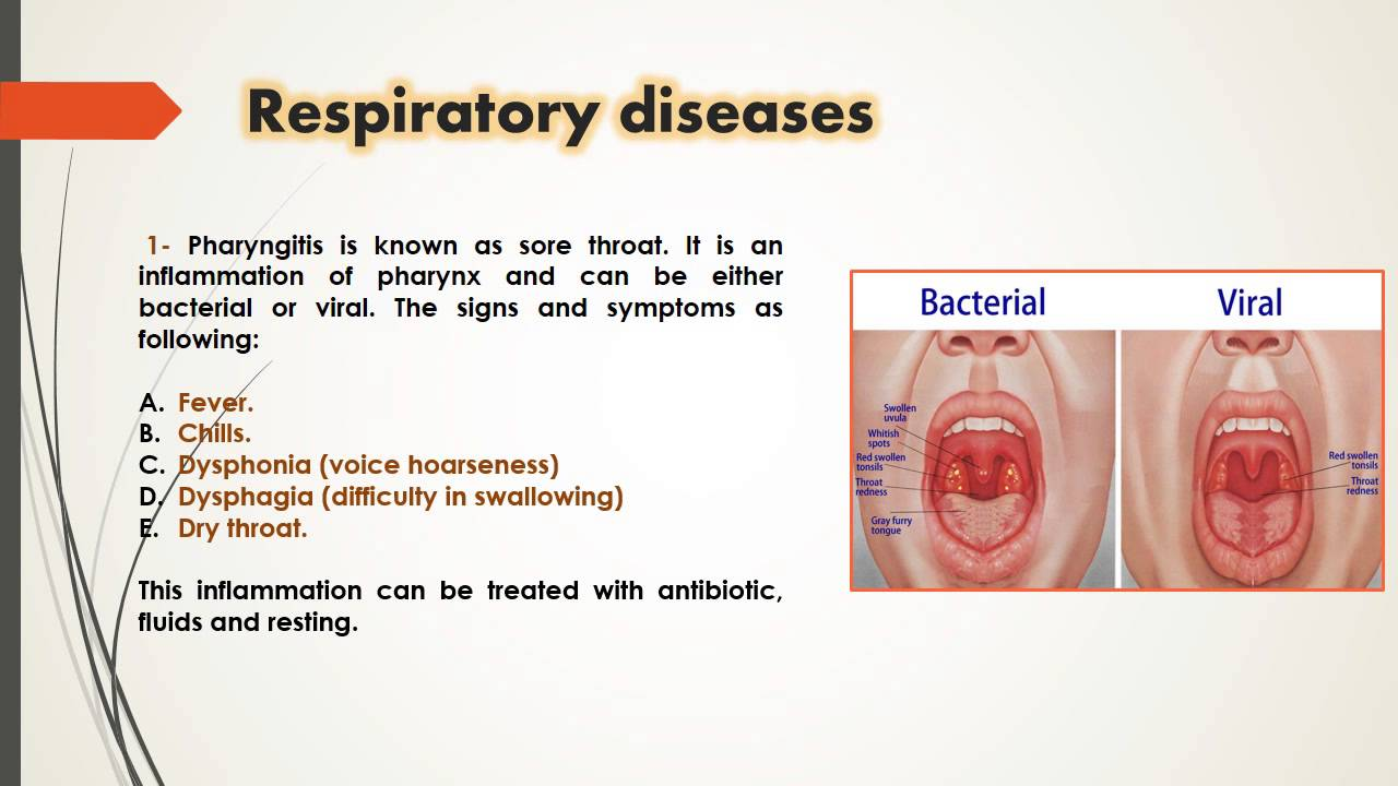 respiratory nomenclature Diphtheria an acute infection of the upper respiratory tract emphysema chronic pulmonary disease loss of the normal elastic properties of the lung pathological distention of interstitial tissue by gas or air.