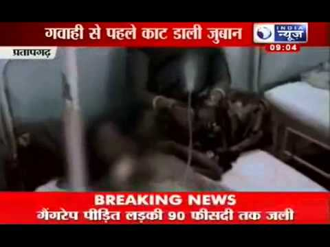 Minor rape case  Victim's tongue chopped off in Pratapgarh