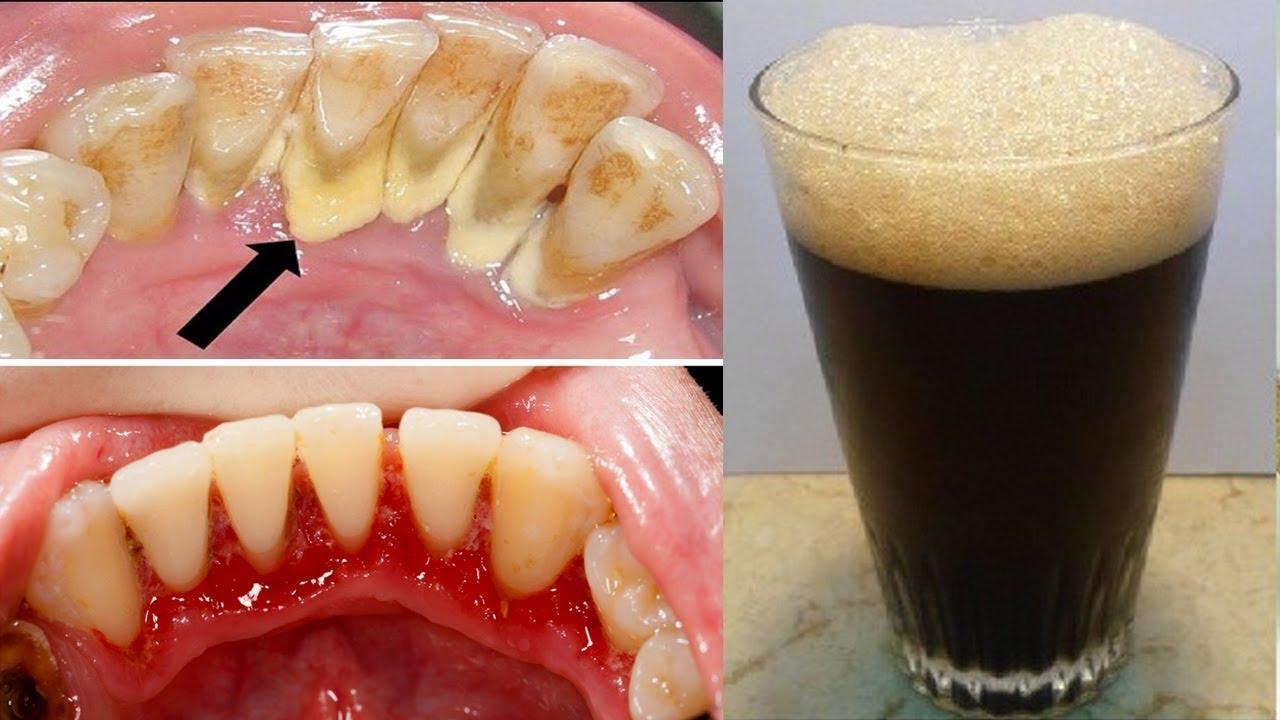 طبيب الاسنان لا يريدك ان تعرف هذا السر للتخلص من الجير و تبييض الاسنان في 3 ايام