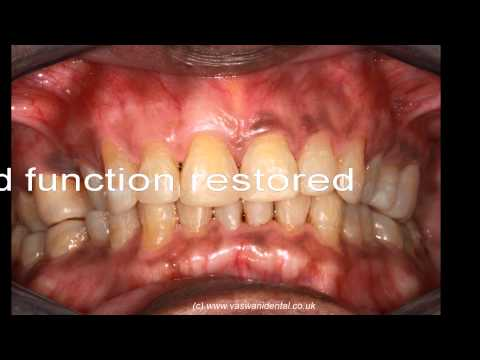 Generalised advanced teeth wear (TSL) restoration by Vaswani Dental at Southgate, London N14