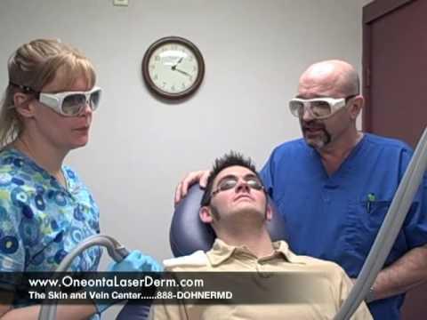 Hair laser removal Washington DC