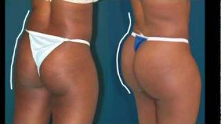 Brazilian Butt Lift  --What happens after losing weight?