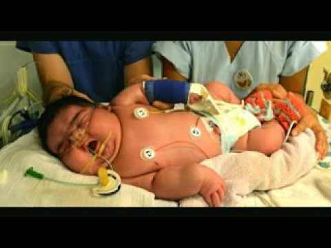 India: Nace la bebé más pesada del mundo con 6'8kg (foto)