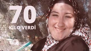 24 Yaşında 70 Kilo Verdi Diyet Mevzuları