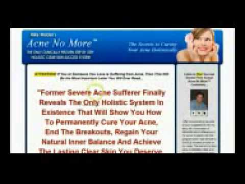 acne cures natural How to Get Rid of Acne Learn How Today!