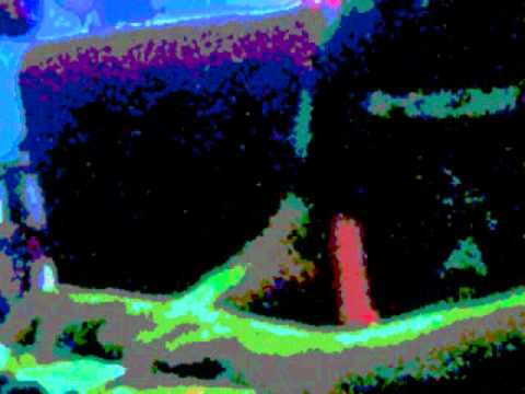 SOUNDSCAPE:Acute Fluoride Poisoning