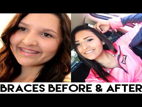 Braces Before & After: My Experience