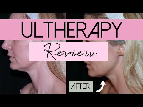 Ultherapy   Non-Invasive Face Lift Treatment   Review   BusbeeStyle TV