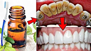सिर्फ 1 मिनट में गंदे पिले दाँतो को मोतियों की तरह सफेद और चमकदार बना देगा ये नुस्खा Teeth Whitening