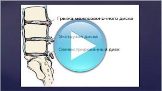 Как лечить секвестрированную грыжу диска l5-s1