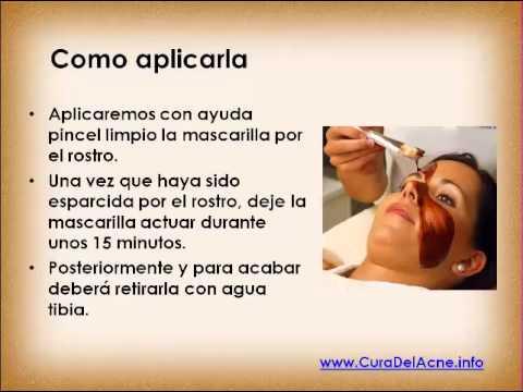 Mascarilla de miel y canela para el acné (muy efectiva y