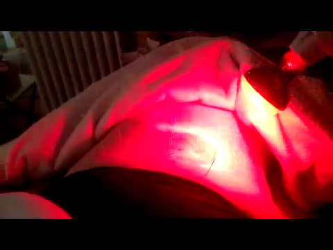 Acupuncture for Sciatica http://www.taiji.net/ppdvd.html