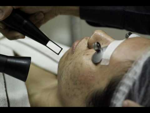 Laser Treatment and Anti Anti Aging Reviews