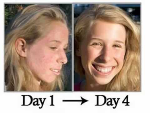 the easiest way to get rid of acne