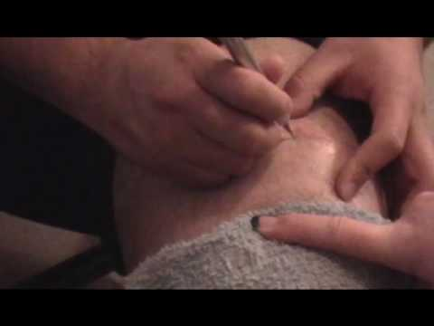 Minor Medical Procedure (04.22.2010) Video