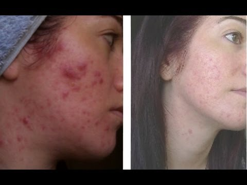 ✔ UPDATED Exposed Skin Care Review - 1 Year on! My Acne
