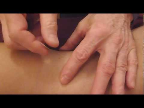 Acupuncture : a Close Up Look - not for the faint of heart