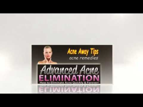 Tips To Get Rid Of Acne - Adult Acne Remedies
