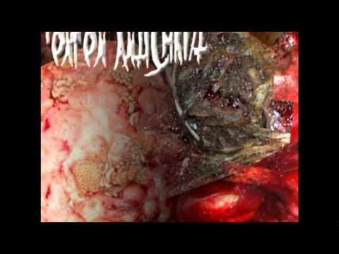 Onion Antichrist - Anal Autopsy video