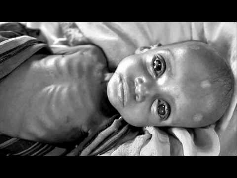 Somalia Famine 2011 - Photos