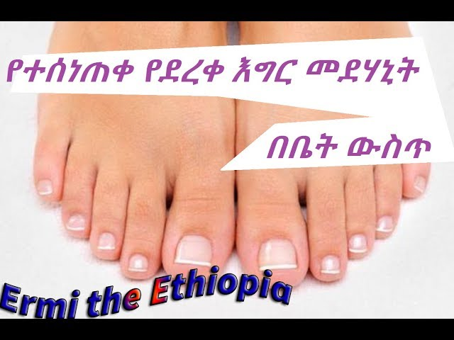 [ Amharic ] How to Cure Dry Feet & Cracked Heels at Home