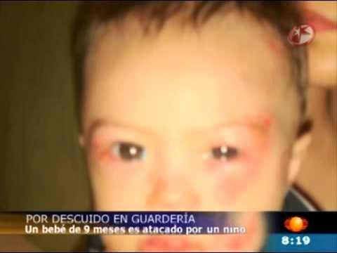 Bebé de 9 Meses Atacado en Guardería de Puerto Vallarta