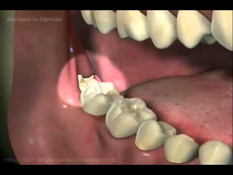 Wisdom Tooth Patient Education 2-Removal