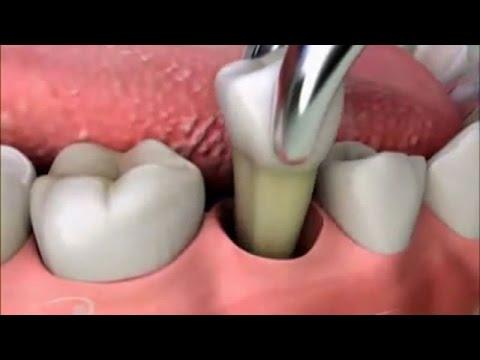 Удаление зуба домашних условиях