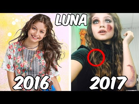 I'm Luna Before and After 2017