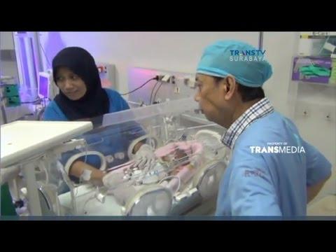 Bayi Kembar Siam Dempet Perut Desta Meninggal #1
