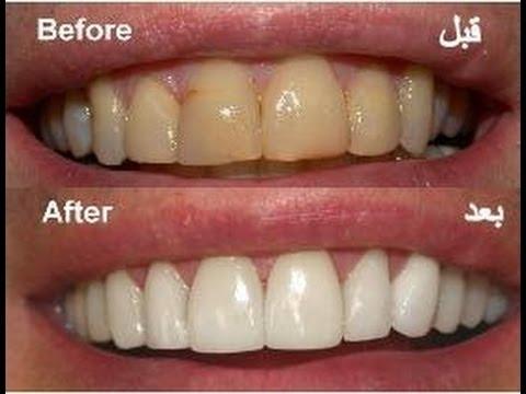 отбеливание зубов полосками crest 3d