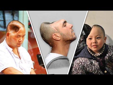 ЖИЗНЬ БЕЗ МОЗГА 5 людей которые продолжают жить без мозга