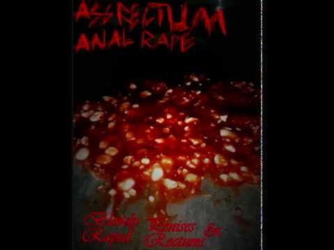 Assrectum-analrape - Bloody Penises & Raped Rectums Ep video