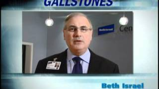 How are gallstones treated?
