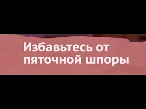 ОТ ШПОР НА ПЯТКАХ - ВОТ РЕЦЕПТ 13.09.2018