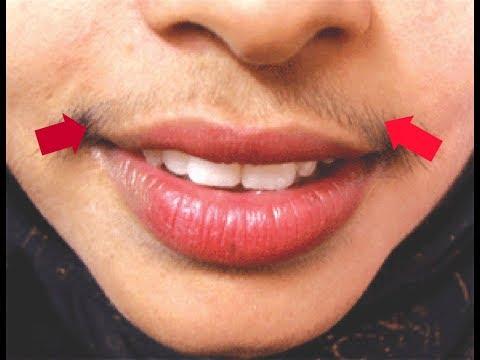 0 - Як прибрати вусики над губою. Прибираємо вусики над губою. У статті розповідається про те, якими способами можна прибрати вусики над губою.