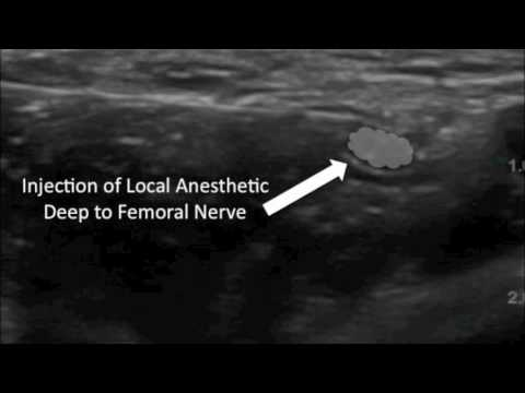 ultrasound guided corticosteroid injection for plantar fasciitis