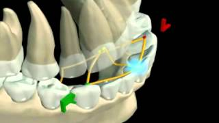Mandibular Movement 3D Graphic Video