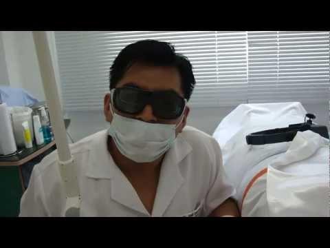 Tratamiento láser para lunares o verrugas de carne en cuello y axila. Por Dermatologo en Lima Perú